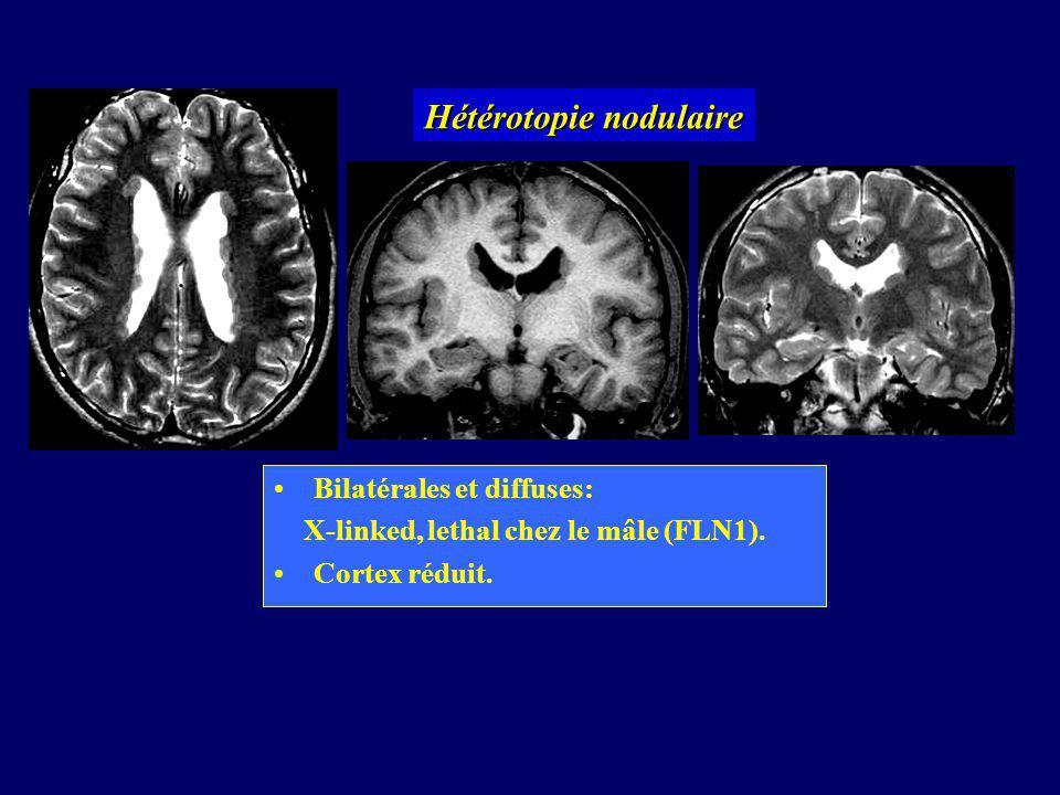 Hétérotopie nodulaire
