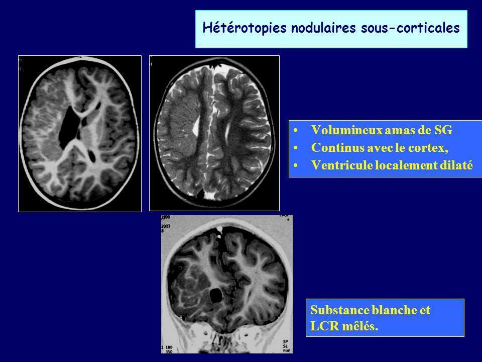 Hétérotopies nodulaires sous-corticales