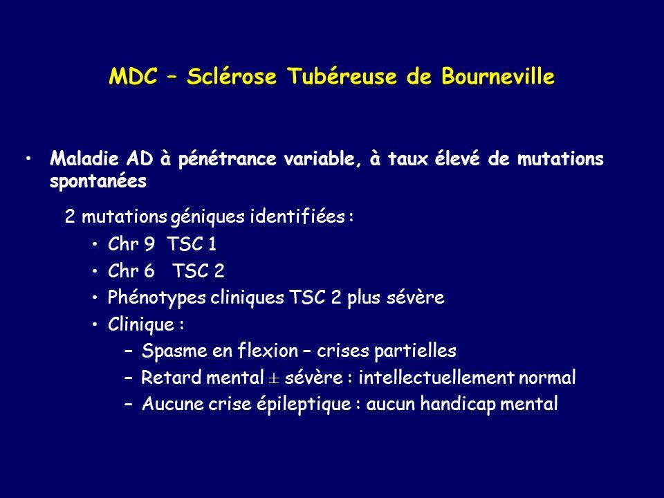 MDC – Sclérose Tubéreuse de Bourneville