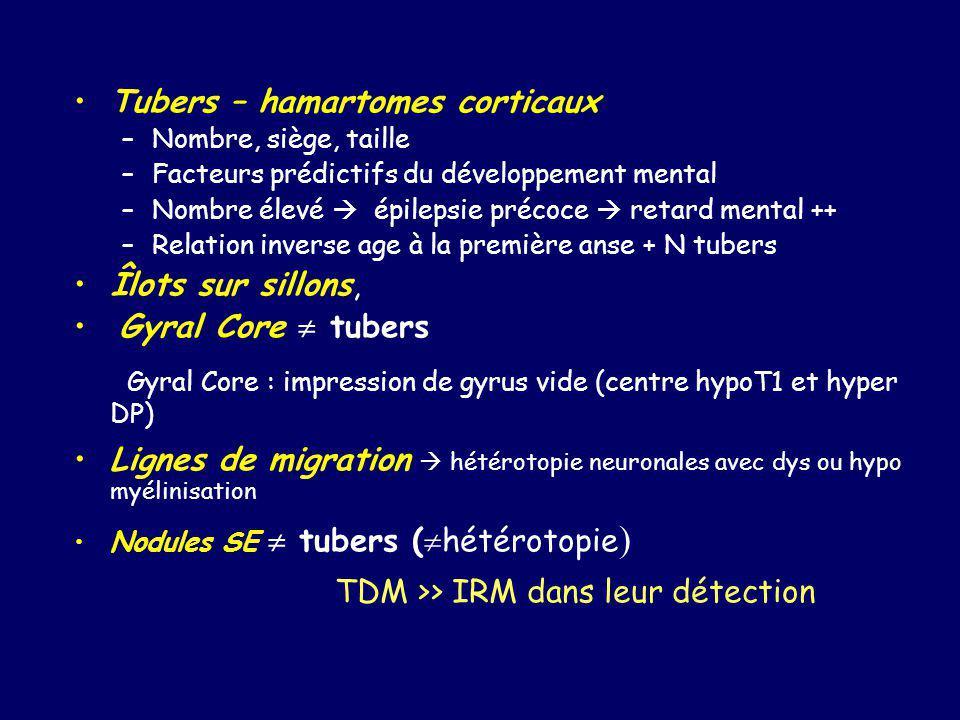 Gyral Core : impression de gyrus vide (centre hypoT1 et hyper DP)