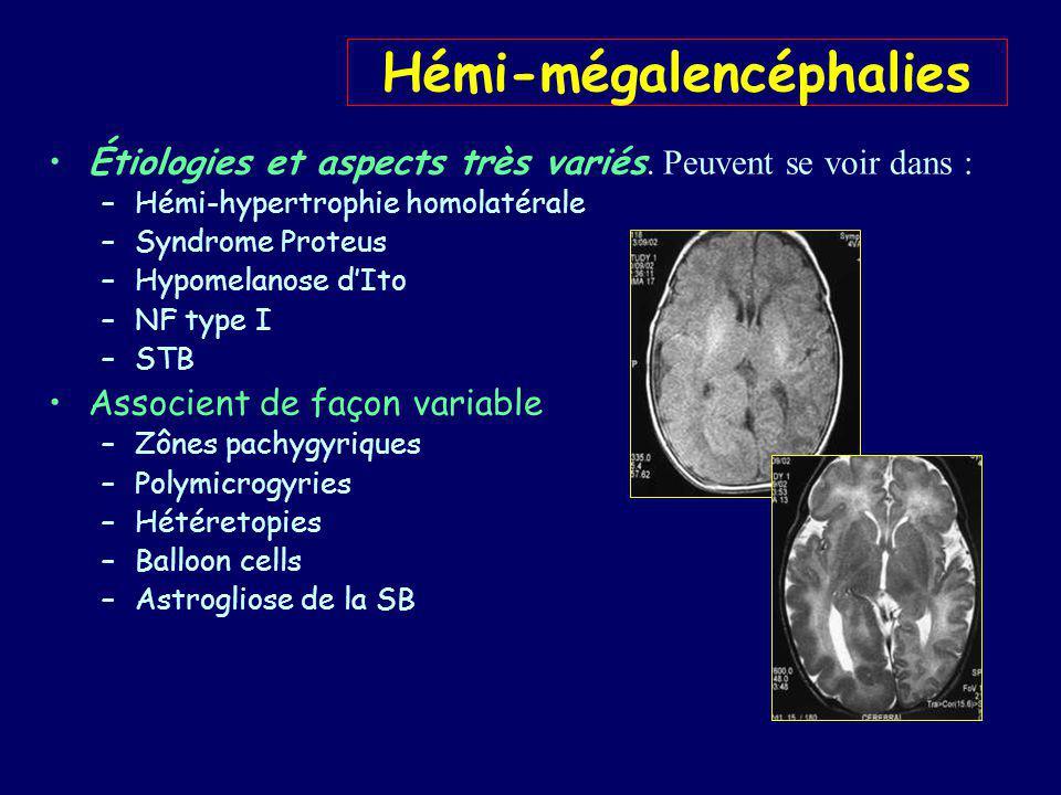 Hémi-mégalencéphalies