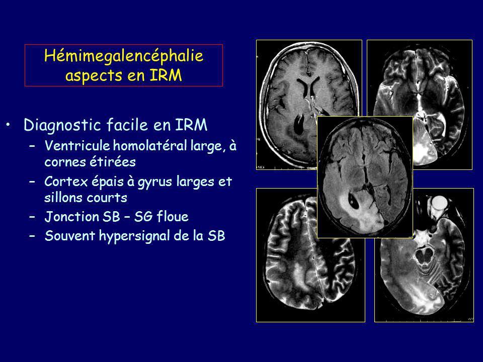 Hémimegalencéphalie aspects en IRM