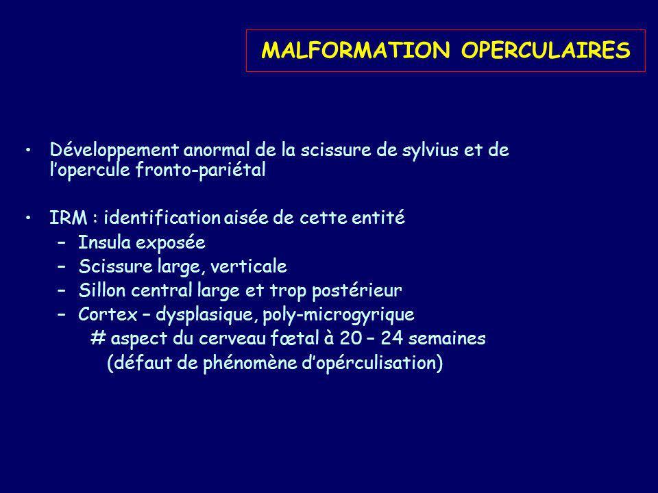 MALFORMATION OPERCULAIRES