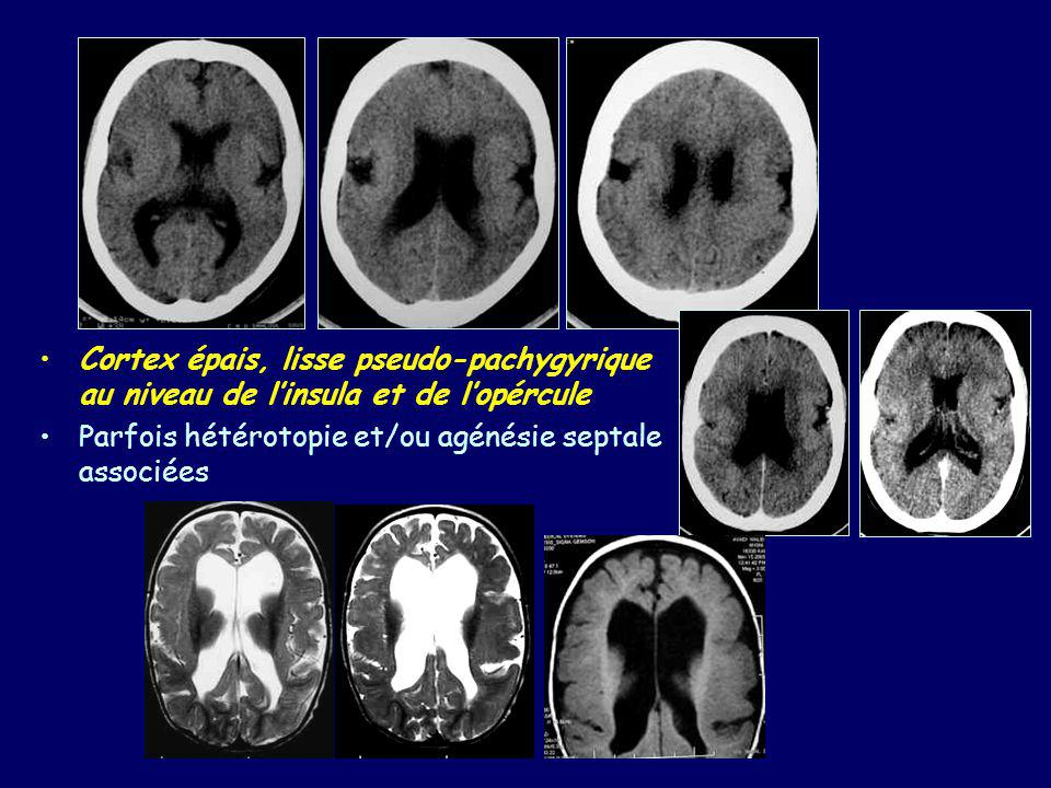 Cortex épais, lisse pseudo-pachygyrique au niveau de l'insula et de l'opércule