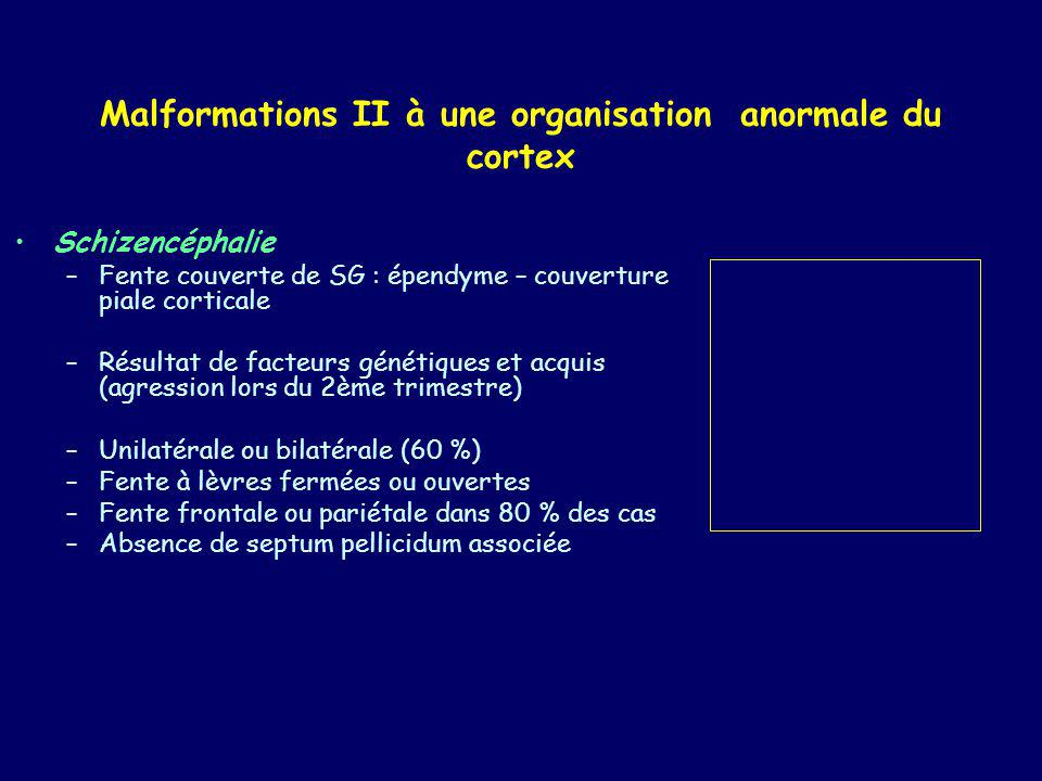 Malformations II à une organisation anormale du cortex