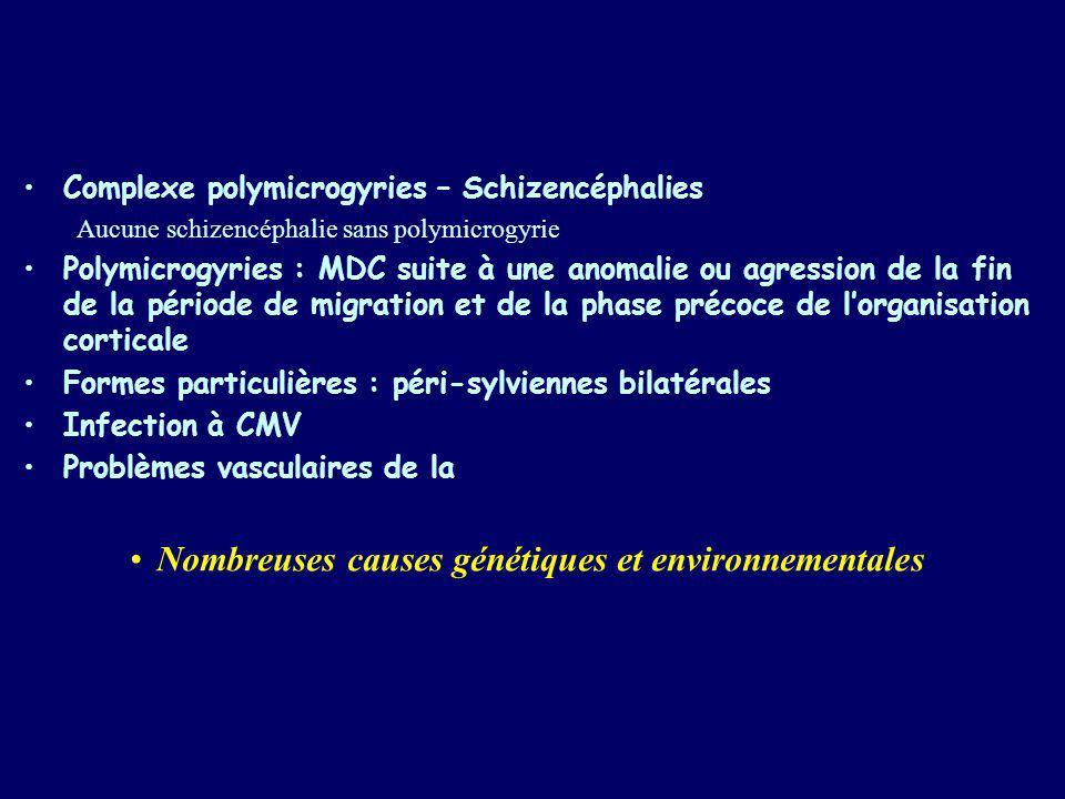 Nombreuses causes génétiques et environnementales