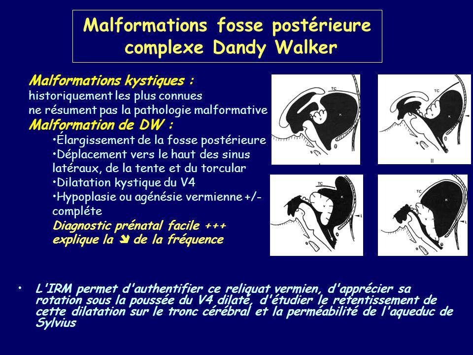 Malformations fosse postérieure complexe Dandy Walker