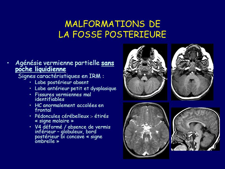 MALFORMATIONS DE LA FOSSE POSTERIEURE