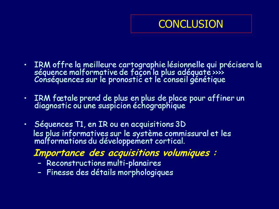 Importance des acquisitions volumiques :