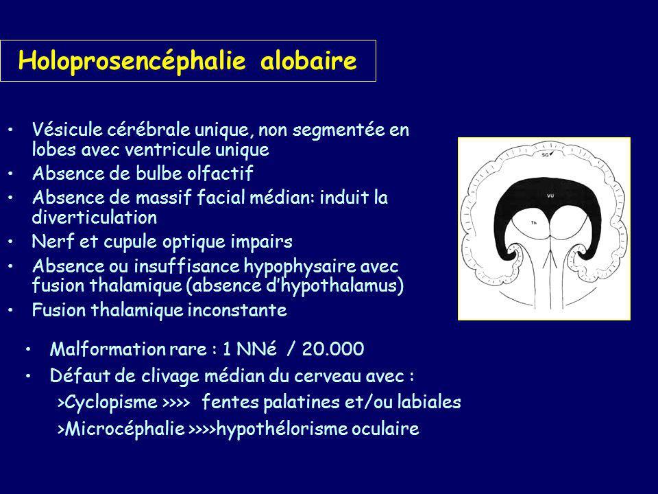 Holoprosencéphalie alobaire
