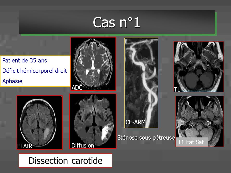 Cas n°1 Dissection carotide Patient de 35 ans