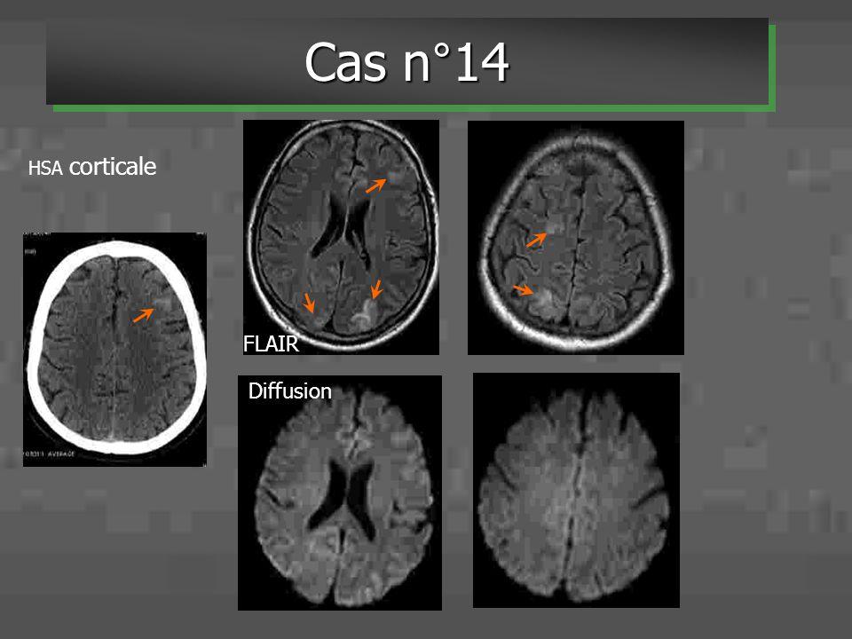 Cas n°14 FLAIR Diffusion HSA corticale Figure 9: Angéite
