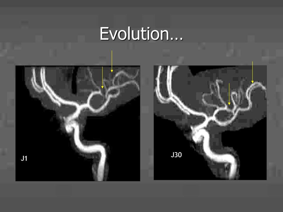 Evolution… J1 J30 29