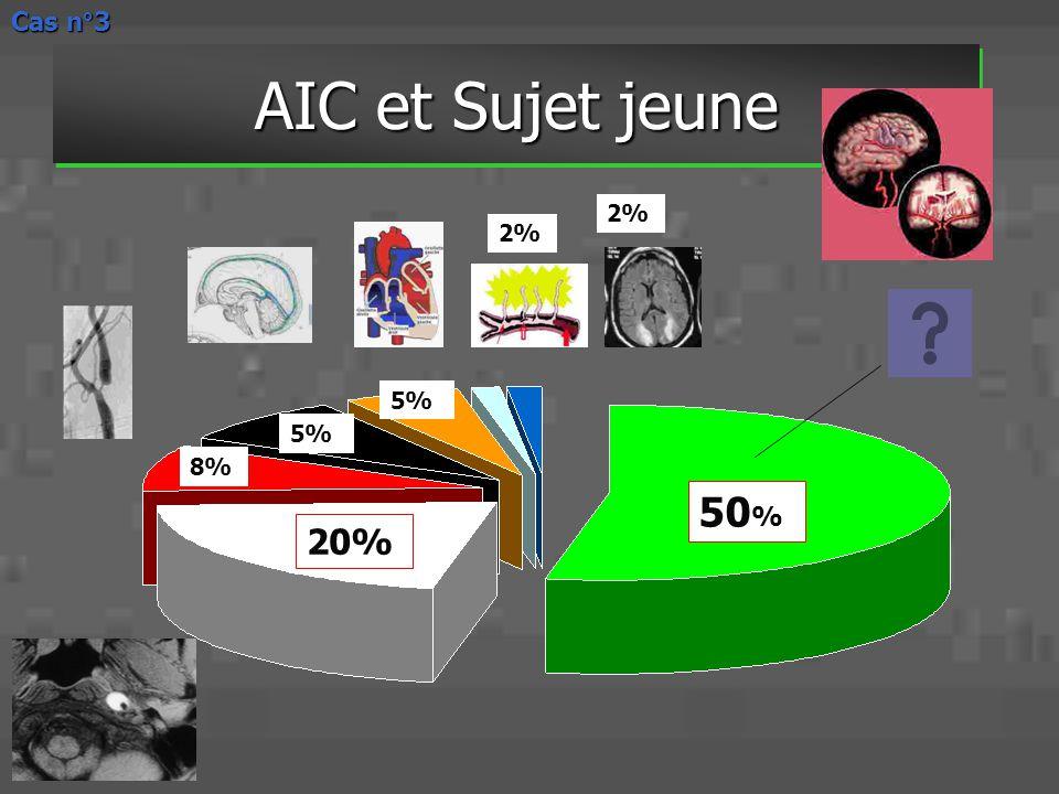 Cas n°3 AIC et Sujet jeune 2% 2% 5% 5% 8% 50% 20%