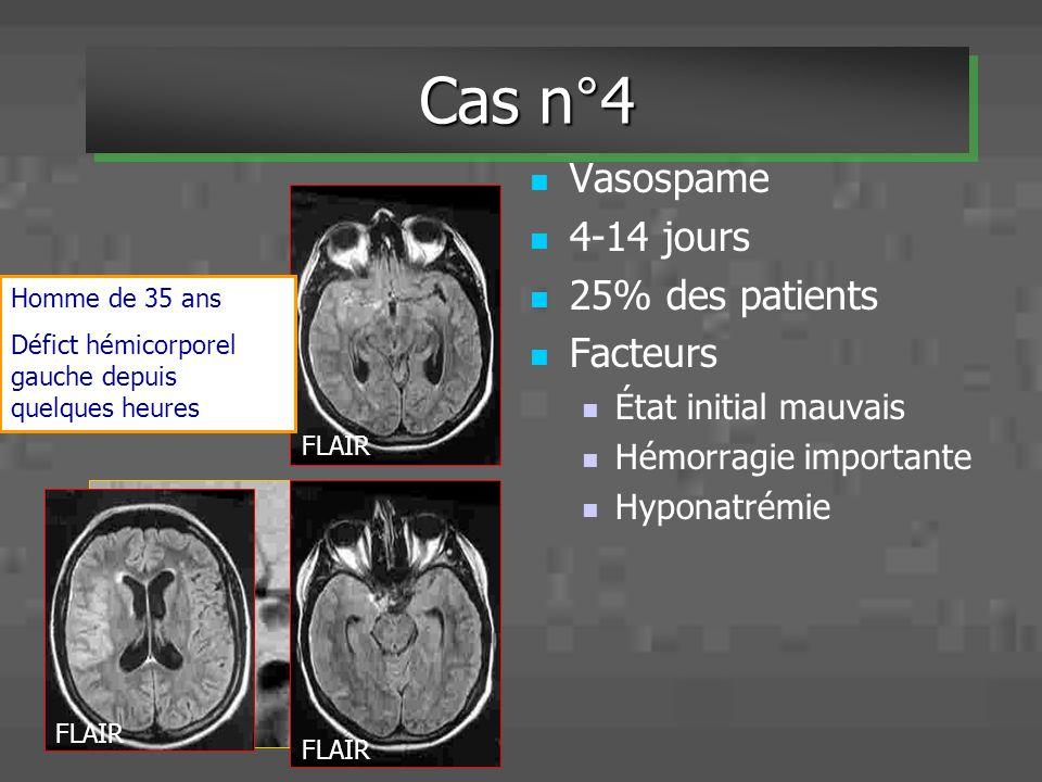Cas n°4 Vasospame 4-14 jours 25% des patients Facteurs