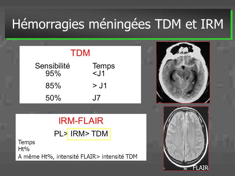 Hémorragies méningées TDM et IRM