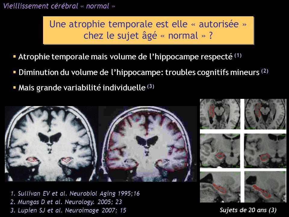 Vieillissement cérébral « normal »