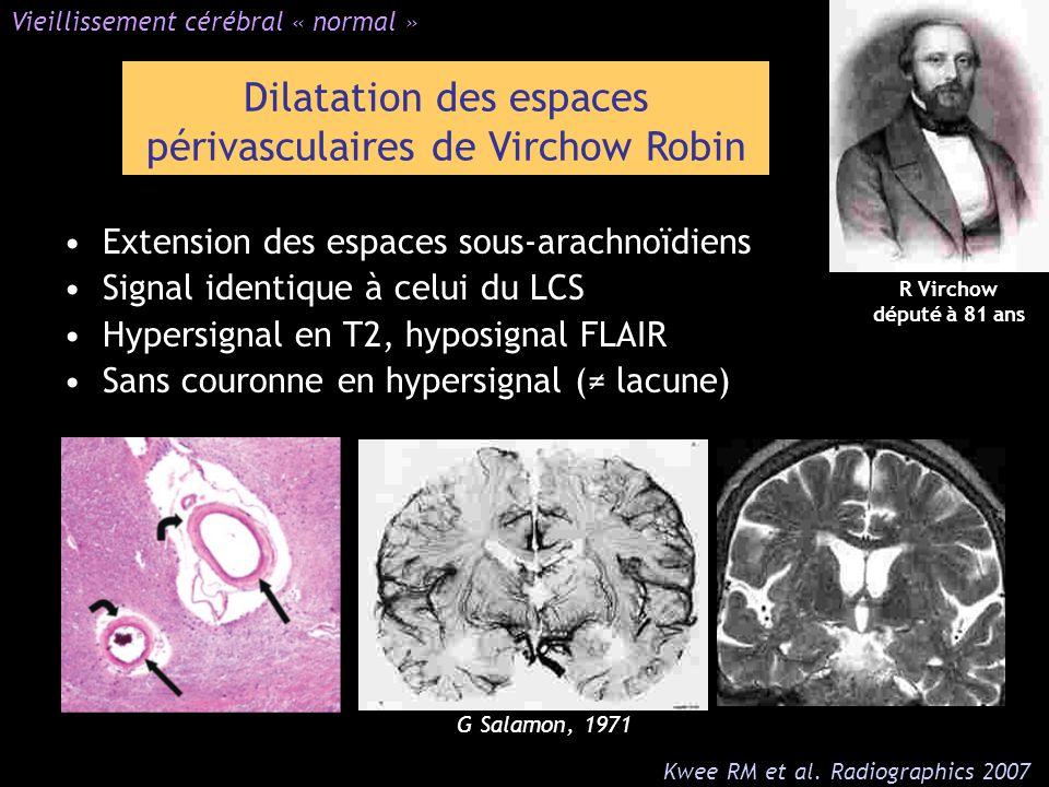 Dilatation des espaces périvasculaires de Virchow Robin