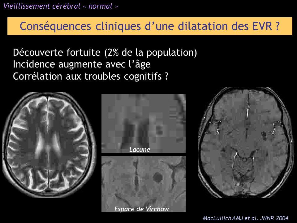 Conséquences cliniques d'une dilatation des EVR
