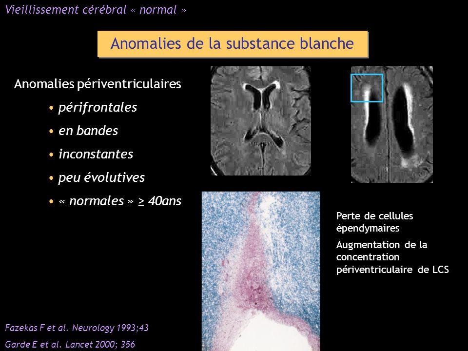 Anomalies de la substance blanche