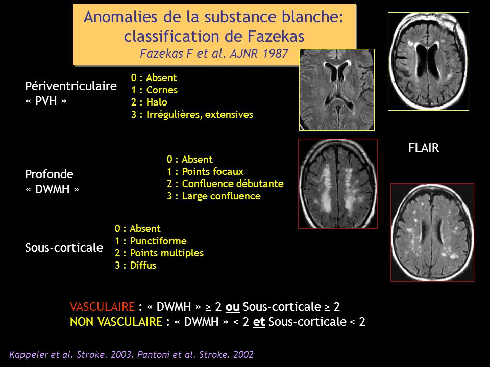 Anomalies de la substance blanche: classification de Fazekas
