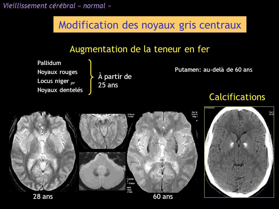 Modification des noyaux gris centraux