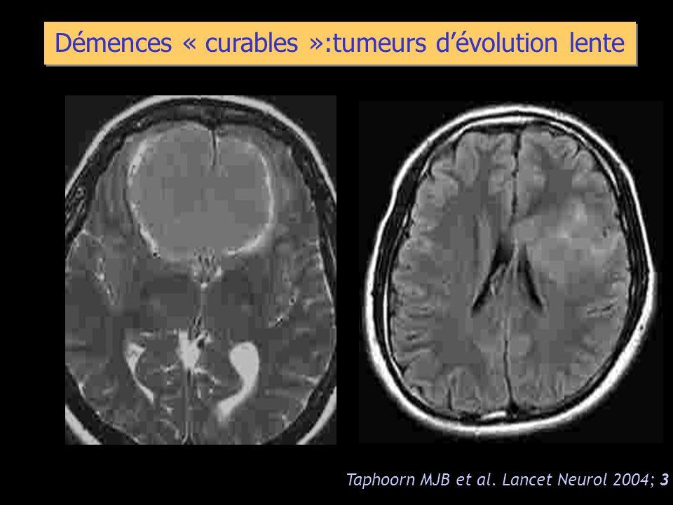 Démences « curables »:tumeurs d'évolution lente