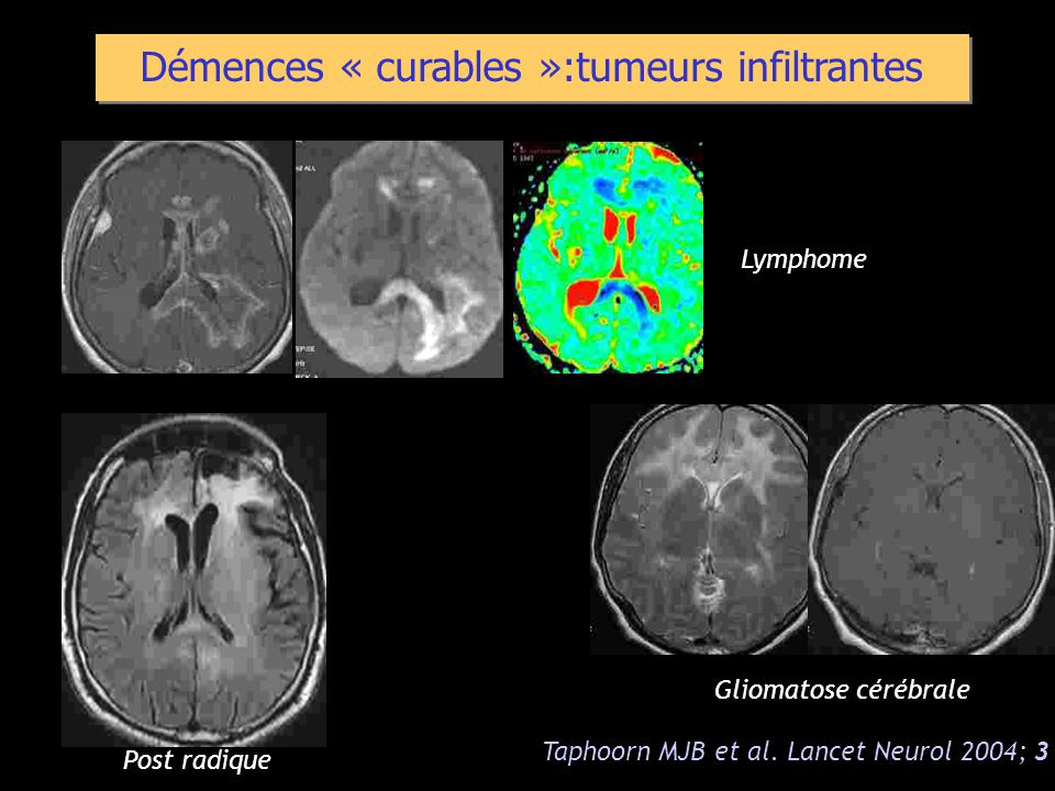 Démences « curables »:tumeurs infiltrantes