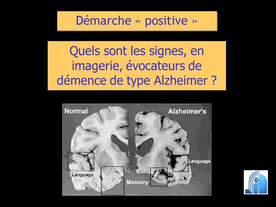 Démarche « positive » Quels sont les signes, en imagerie, évocateurs de démence de type Alzheimer