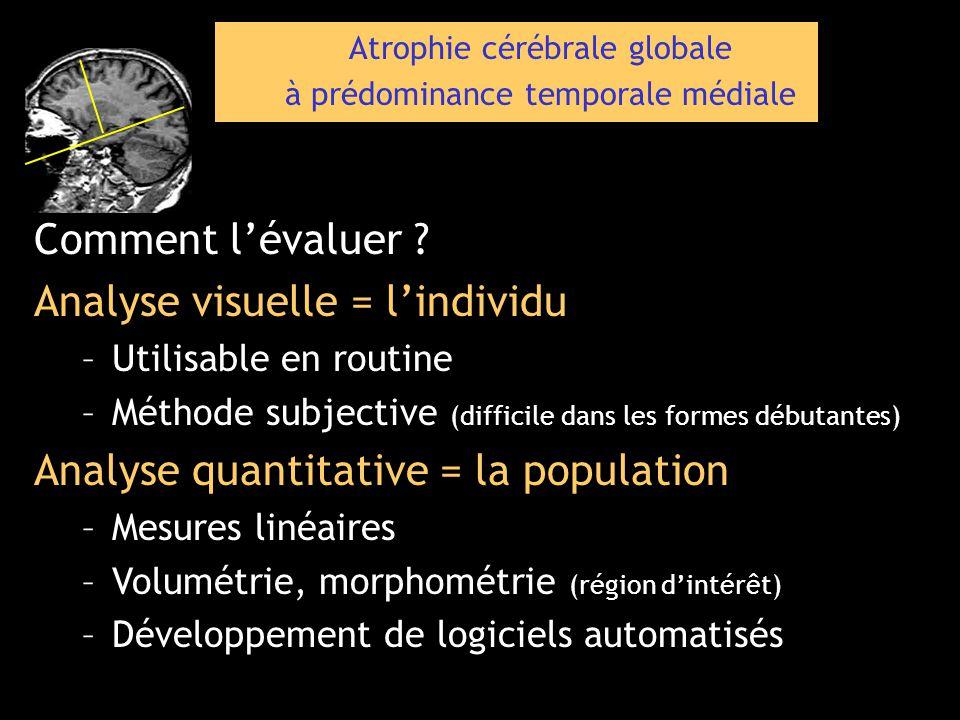 Analyse visuelle = l'individu