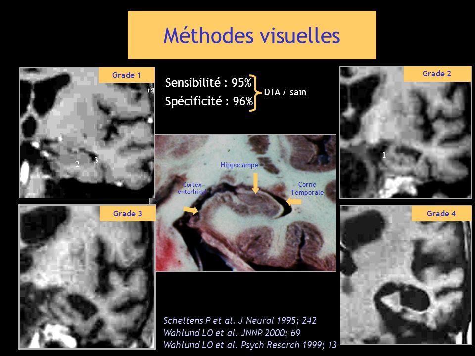 Méthodes visuelles Sensibilité : 95% Spécificité : 96% DTA / sain 1 3