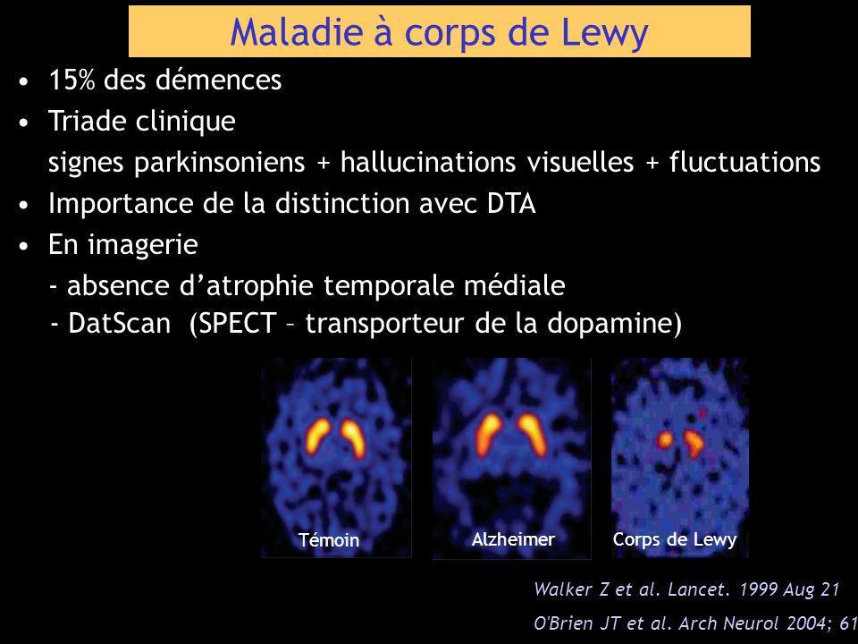 Maladie à corps de Lewy 15% des démences Triade clinique