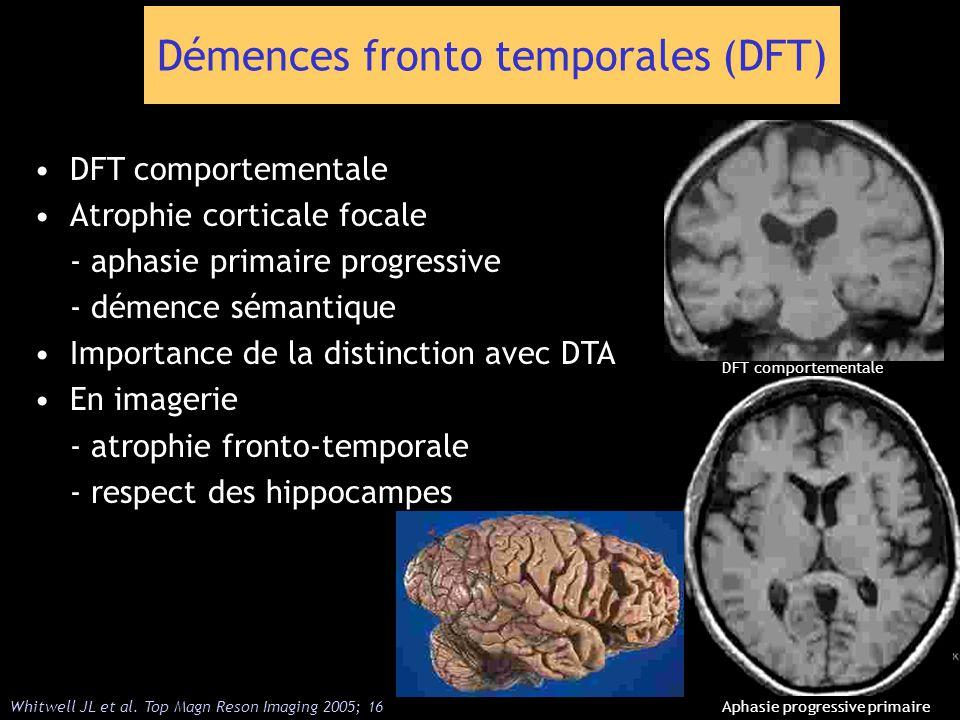 Démences fronto temporales (DFT)