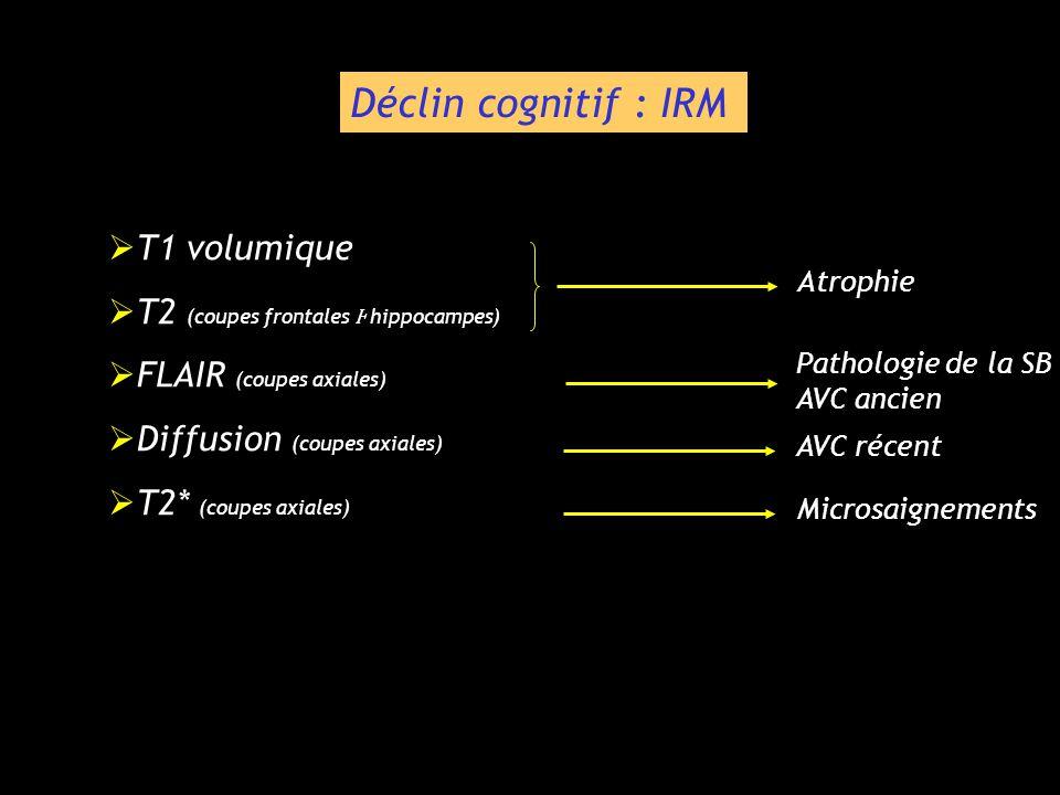 Déclin cognitif : IRM T1 volumique T2 (coupes frontales Ⱶ hippocampes)