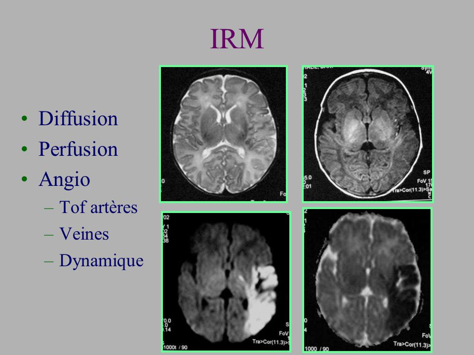 IRM Diffusion Perfusion Angio Tof artères Veines Dynamique