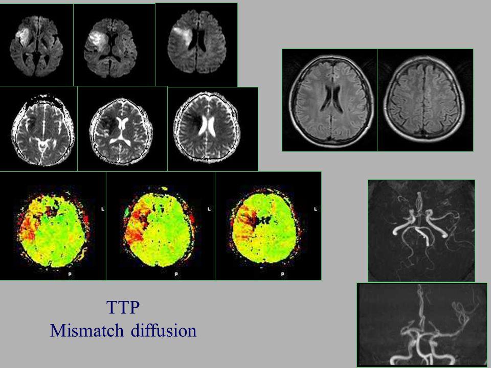 TTP Mismatch diffusion