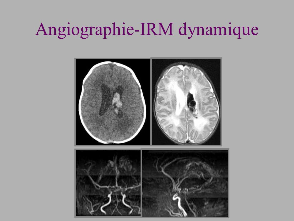 Angiographie-IRM dynamique