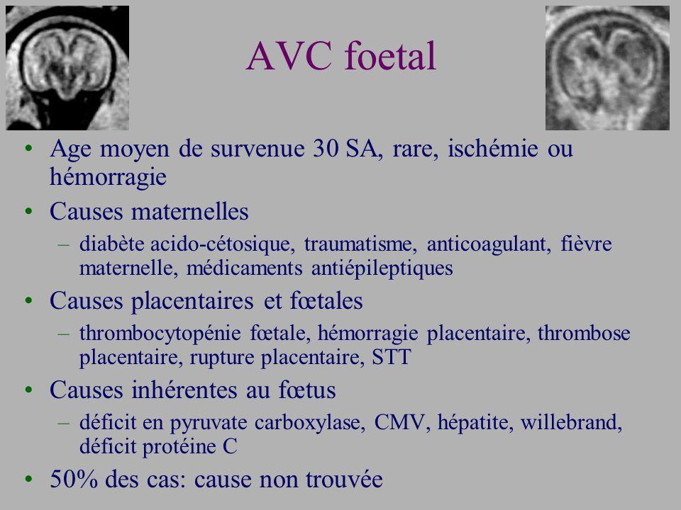 AVC foetal Age moyen de survenue 30 SA, rare, ischémie ou hémorragie
