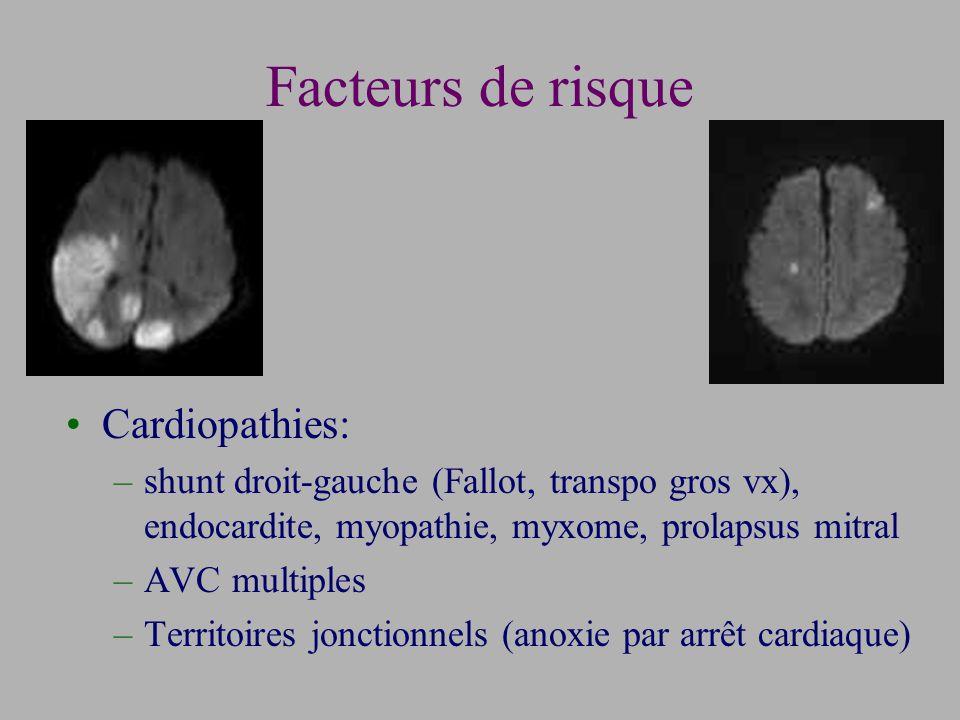Facteurs de risque Cardiopathies: