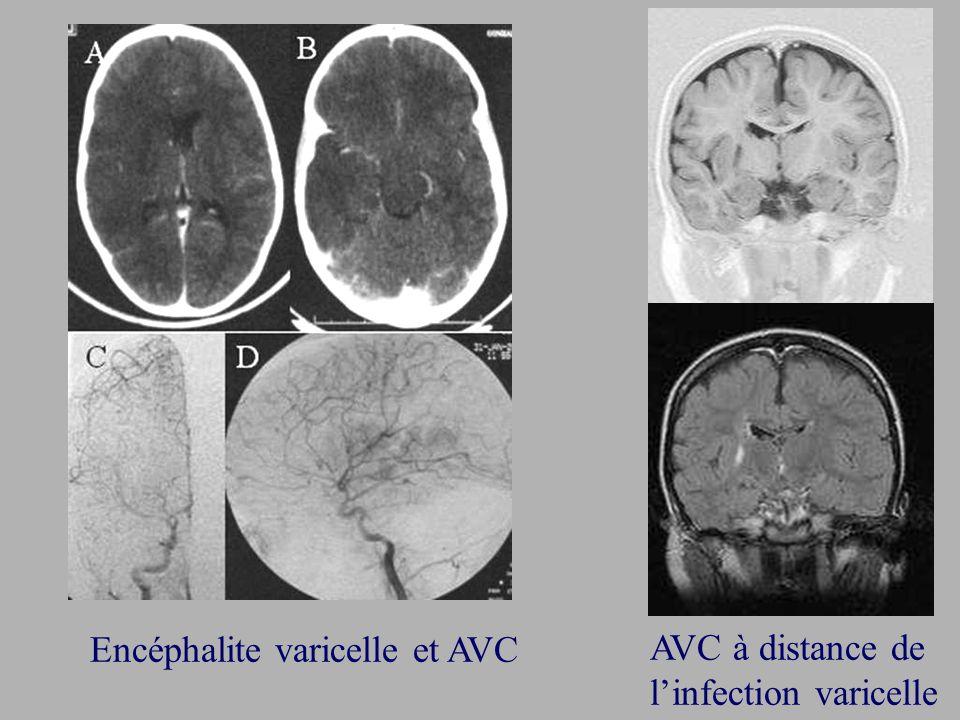 Encéphalite varicelle et AVC