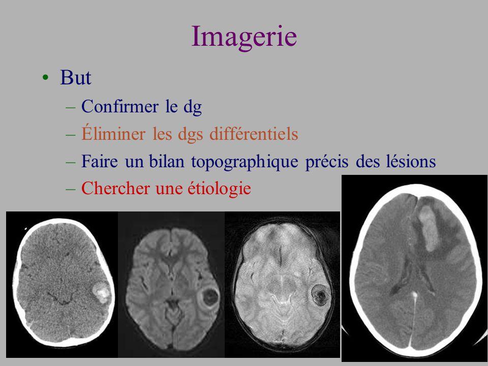 Imagerie But Confirmer le dg Éliminer les dgs différentiels