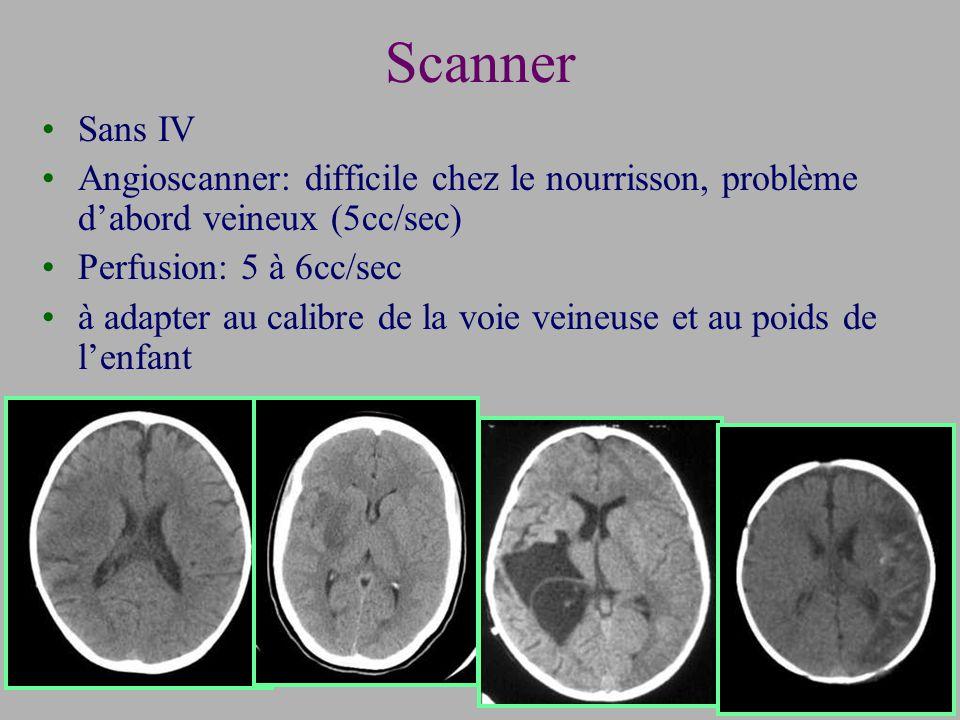 Scanner Sans IV. Angioscanner: difficile chez le nourrisson, problème d'abord veineux (5cc/sec) Perfusion: 5 à 6cc/sec.