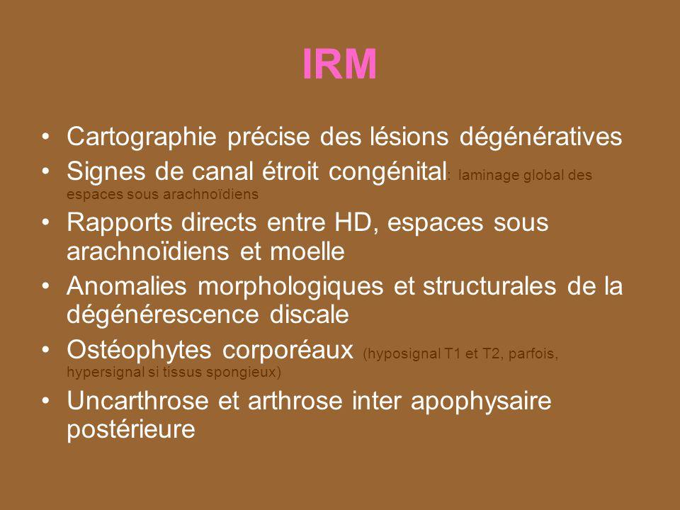 IRM Cartographie précise des lésions dégénératives
