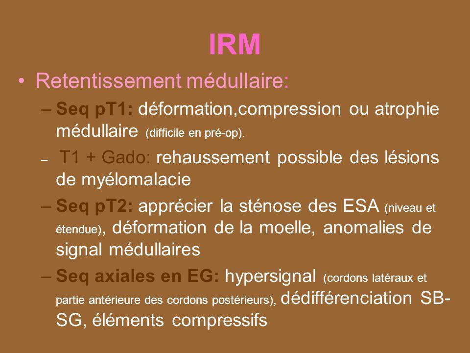 IRM Retentissement médullaire: