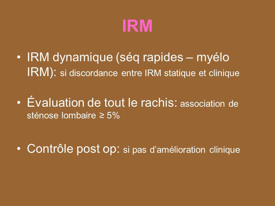 IRM IRM dynamique (séq rapides – myélo IRM): si discordance entre IRM statique et clinique.