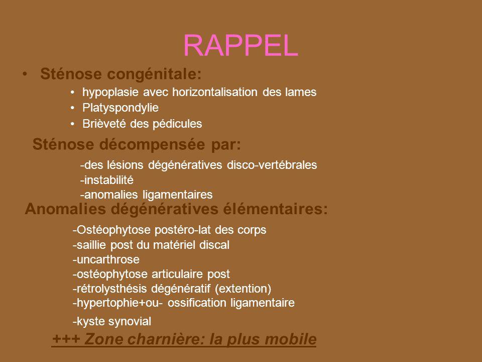 RAPPEL Sténose congénitale: Sténose décompensée par:
