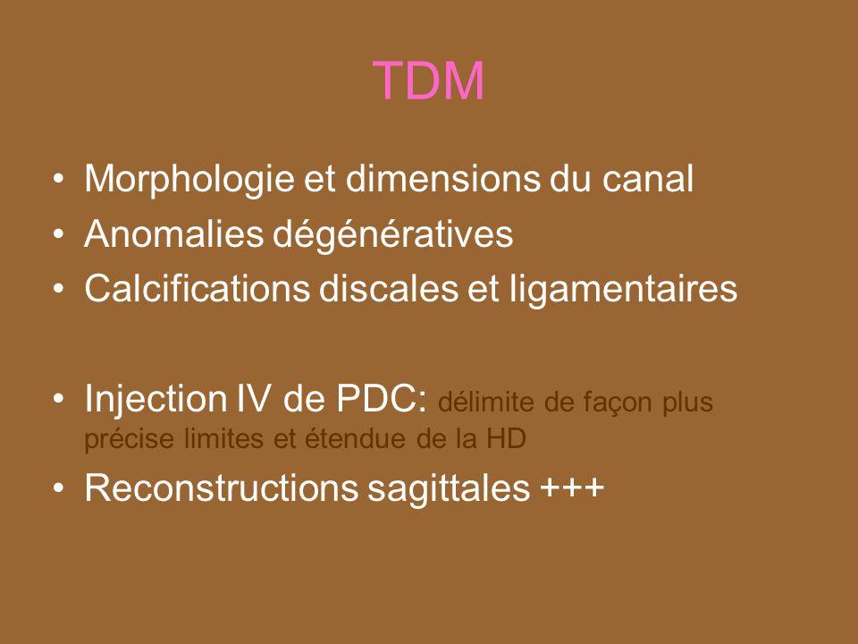 TDM Morphologie et dimensions du canal Anomalies dégénératives