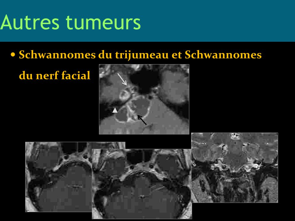 Autres tumeurs Schwannomes du trijumeau et Schwannomes du nerf facial