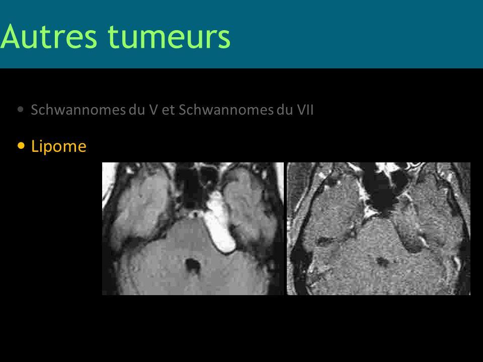Autres tumeurs Schwannomes du V et Schwannomes du VII Lipome