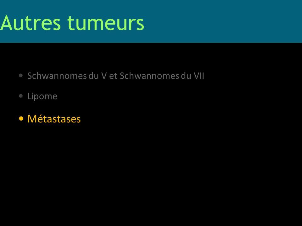 Autres tumeurs Métastases Schwannomes du V et Schwannomes du VII